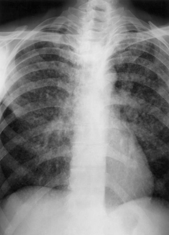 Как защитить себя и своих детей от туберкулёза